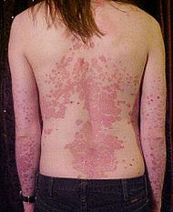 Из-за чего возникает псориаз, Сайт здоровой кожи