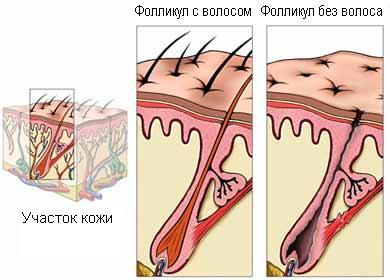 Маска для волос с витаминами в ампулах отзывы при выпадении