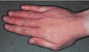 мазь от холодовой аллергии на лице
