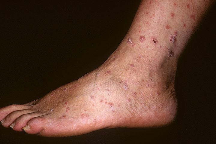 Чем можно успокоить псориаз - Псориаз. Лечение