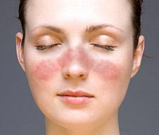 discoid lupus erythematosus Дискоидная красная волчанка. Диагностика. Лечение. Симптомы. Фото.