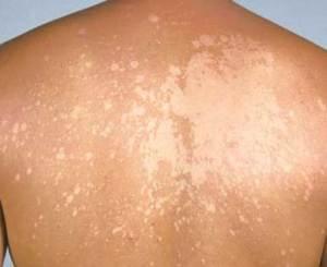 tinea versicolor 300x245 Грибковые заболевания кожи. Новейшие возможности лечения