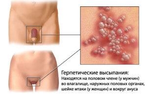 herpes-4