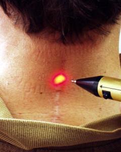 Лечение рубцов лазером