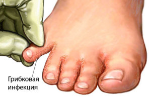 Мембранная эпидермофития стопы