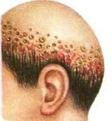Скутулярный фавус волосистой части головы