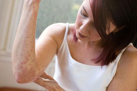 treatment-for-eczema-eczema-signs-woman