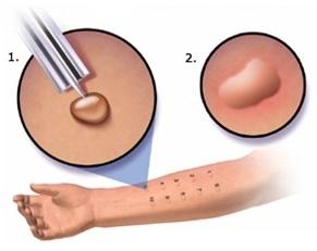 кожная проба на аллергию