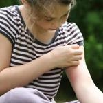 Контактный дерматит и его разновидности