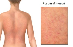 pityriasis-rosea