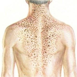 Болезнь Дарье. Узелковые высыпания на спине