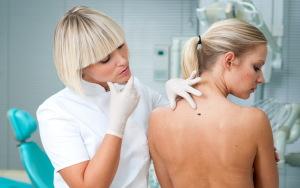 skin-check-up