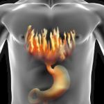 Изжога – лечить или вылечить?