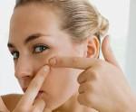 Экскориированное акне или угревая сыпь на нервной почве