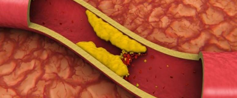 уровень холестерина и придет