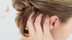 Самые частые причины зуда кожи головы