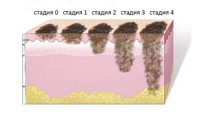 Меланома стадии фото