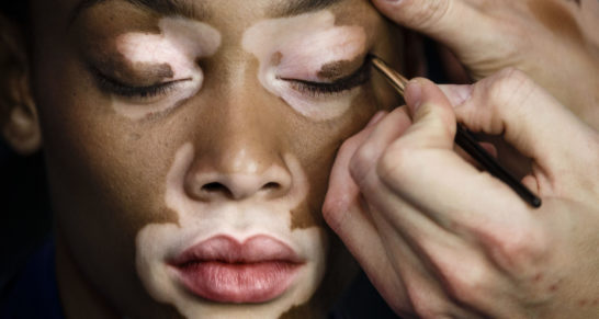 Top model Chantelle Brown-Young, known as Winnie Harlow, gets her make up applied before displaying a Spring/Summer design by Desigual at Madrid's Fashion Week in Madrid, Spain, Friday, Feb. 6, 2015.(AP Photo/Daniel Ochoa de Olza)