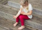 Как не допустить расчесывания очагов экземы у ребенка