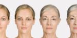 Старение лица: типы, причины и тактика действий